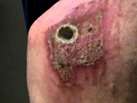skin cancer day 6 on amazon black salve youtube