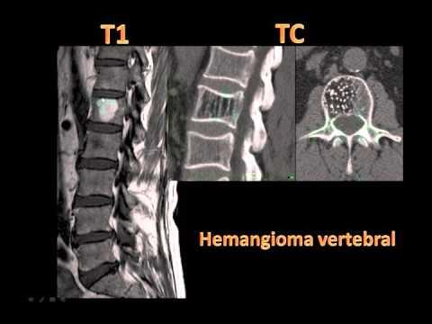 o que significa hemangioma