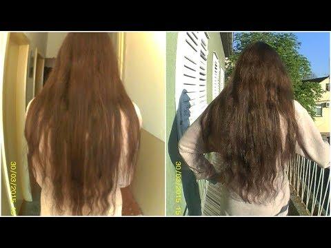 Transplantacija kose u zagrebu