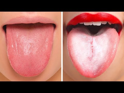18 THINGS YOUR TONGUE IS TRYING TO TELL ABOUT YOUR HEALTH