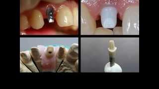 Абатмент из циркония(Абатмент это небольшая насадка на имплантат, которая служит основой для коронки. Абатмент используется..., 2013-11-26T00:25:47.000Z)