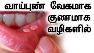Home Remedy For Mouth Ulcer In Tamil