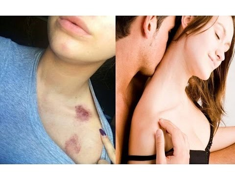 Guy you give how a get to a hickey to How To