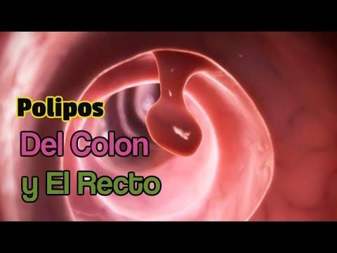 Polipos Del Colon y El Recto
