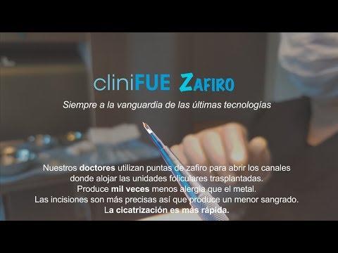 Nueva TÉCNICA en cliniFUE: LA PUNTA DE ZAFIRO