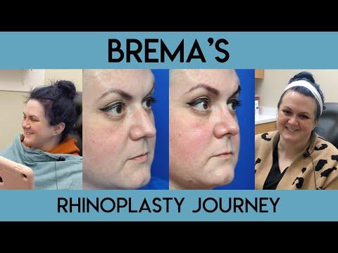Brema's Rhinoplasty Journey