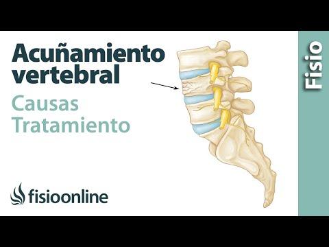 Fractura por acuñamiento vertebral. Qué es, causas, síntomas y tratamiento.