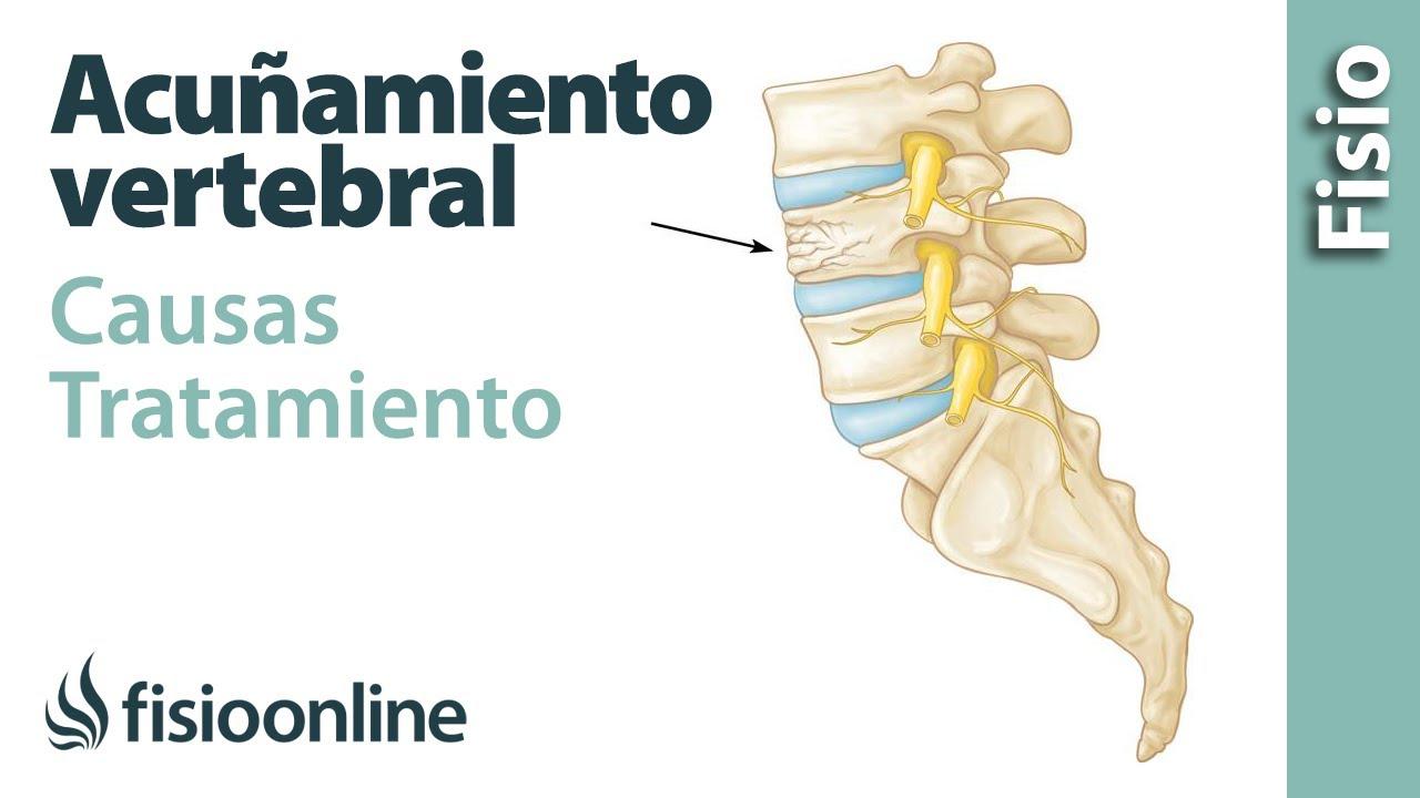 Lumbar hernia wikipedia disco de