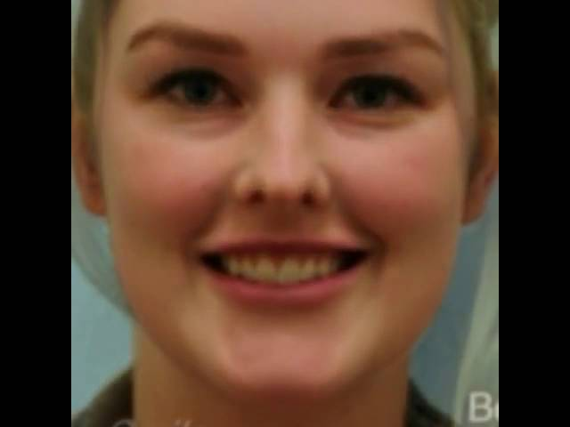 Dallas Botox for Gummy Smile Transformation Before and After by Dr. Sam Lam