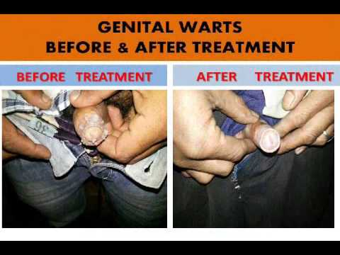 diseases conditions genital warts diagnosis treatment treatment txc