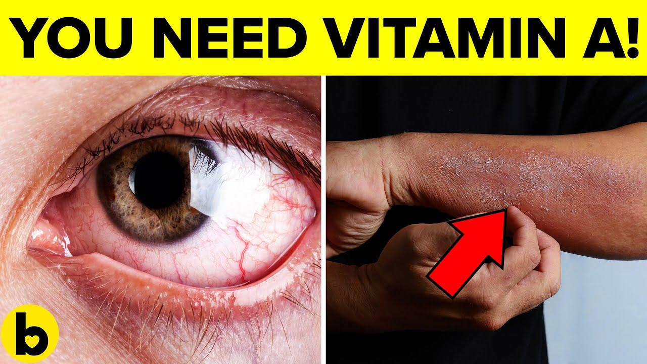 e vitamin a genitális szemölcsökből
