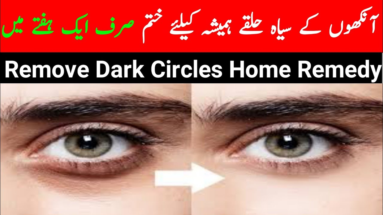 How to Remove Dark Circles Under Eyes Naturally in One ...
