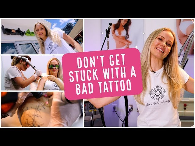 Tattoo Removal Fort Lauderdale | Don't Get Stuck With Bad Ink | Gin Amber | Body Details