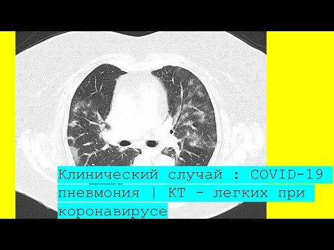 COVID-19 пневмония   КТ - легких при коронавирусе   Легкие при коронавирусе