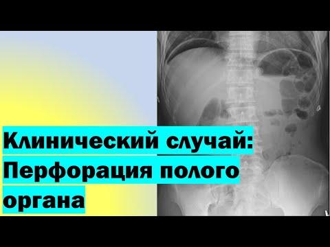 Клинический случай: Перфорация полого органа