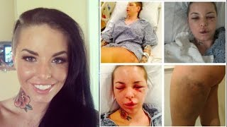 MMA Fighter Brutal Beating of Porn Star Christy Mack @Hodgetwins