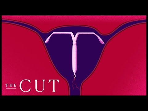 The IUD Is Making a Comeback
