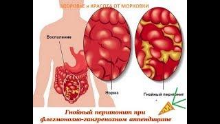 эту болезнь должен знать каждый - Перитонит