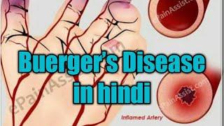 Mengenal Apa Itu Penyakit Arteri Perifer - dr. Birry Karim, SpPD-KKV.