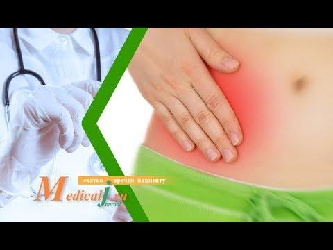Аппендицит: какие симптомы, как определить, как лечить?