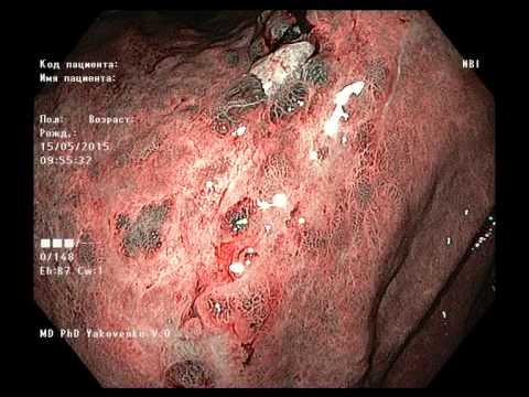 Увеличение лимфоузлов на шее : причины и лечение