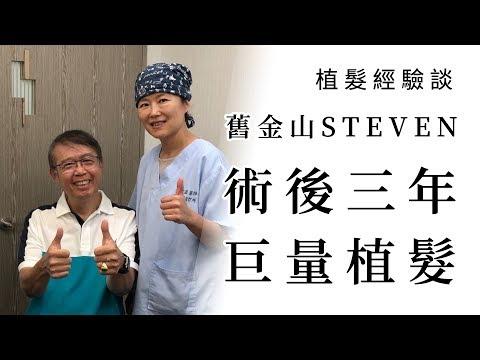 植髮經驗談 │ Steven 巨量植髮 喜獲重生 │ 林宜蓉醫師 Dr.Yi Jung Lin 台灣植髮 Taiwan hair transplant