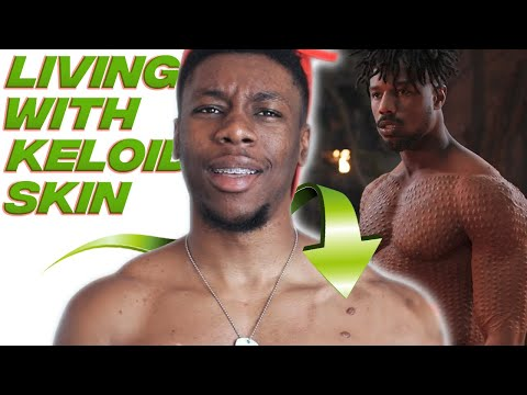 The Truth About Living With Keloid Skin