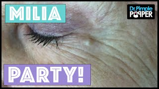 Milia extractions Today