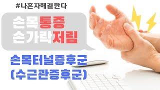 (손목통증,손저림)손목터널증후군 치료 방법!(수근관증후…