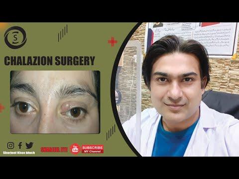chalazion-surgery