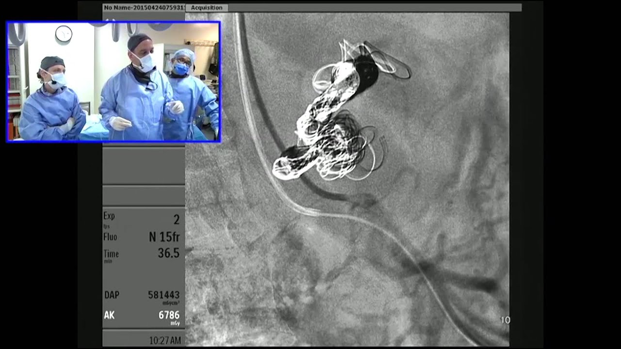 Celiac Artery Aneurysm Embolization using a Transradial Approach