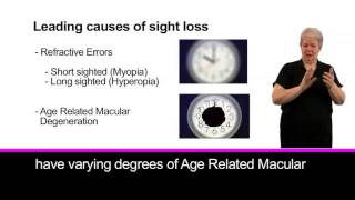 Most common age related causes of sight loss