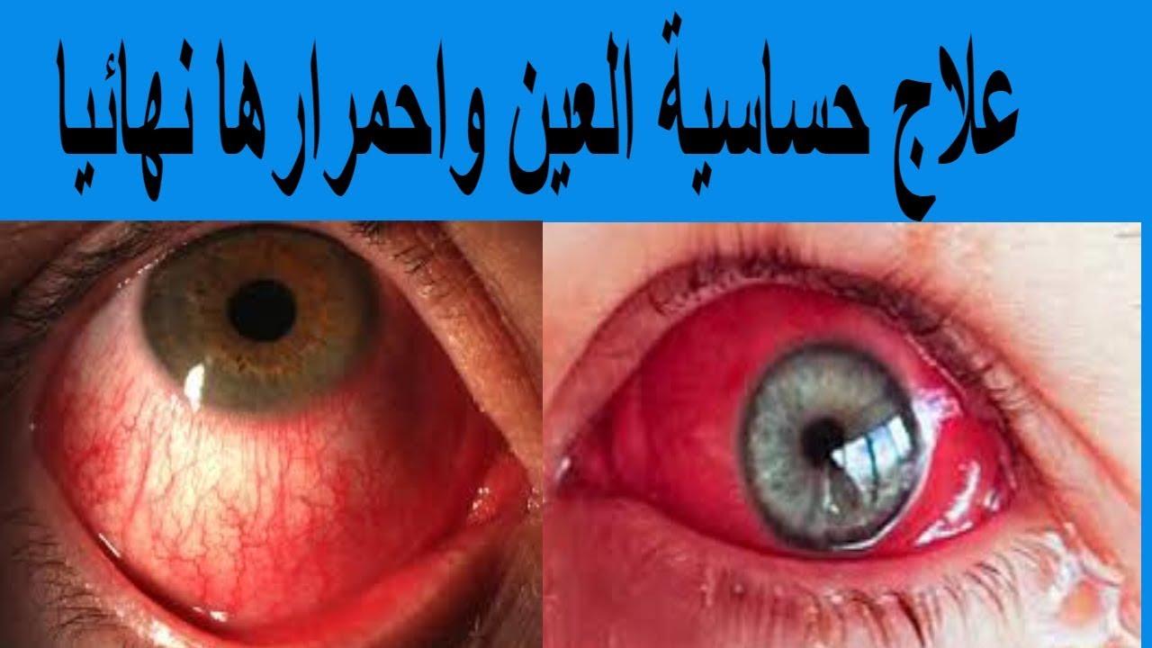 علاج حساسية العين واحمرارها نهائيا Youtube