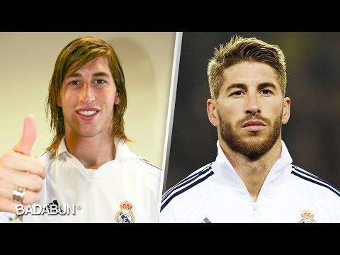 As lucan los futbolistas antes de sus cirugas