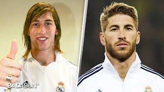 Así lucían los futbolistas antes de sus cirugías