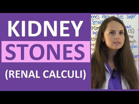 Kidney Stones (Renal Calculi) Nursing Lecture Symptoms, Treatment, Causes NCLEX