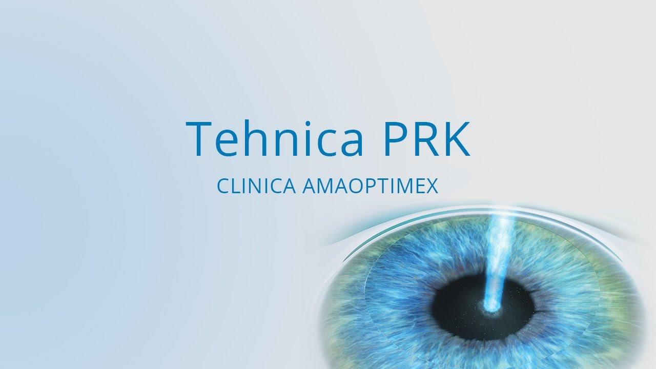 examen înainte de operația oculară