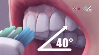 Как правильно чистить зубы  Правила чистки зубов  Стоматология(В этом видео по стоматологии мы вам расскажем: Как правильно чистить зубы Правила чистки зубов Стоматолог..., 2016-05-03T13:56:49.000Z)