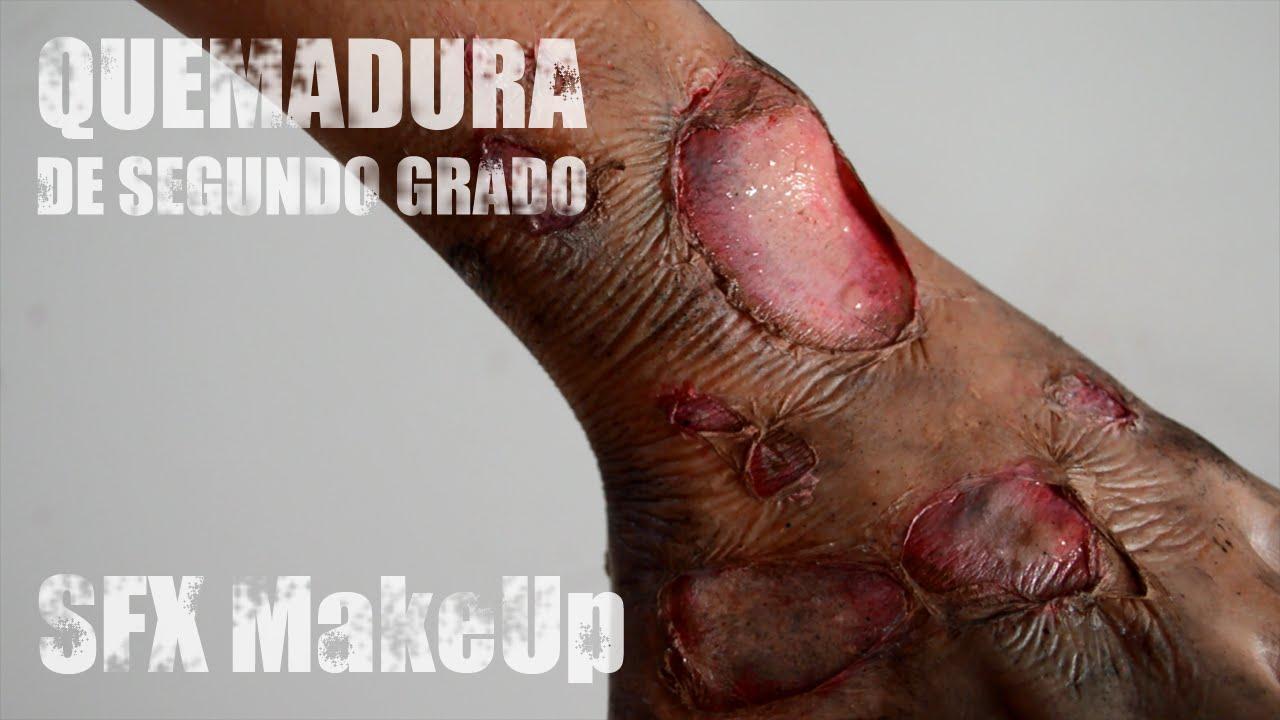 Maquillaje FX Quemadura 2º grado / SFX Second Degree Burn Makeup ...
