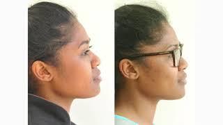 Compilation braces media compilation facial showing posts facial Braces for