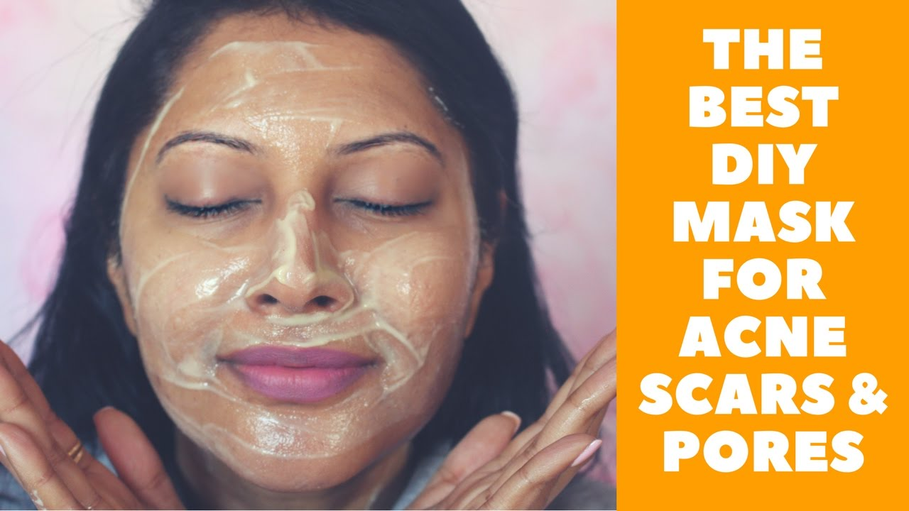 How To Make An Amazing Face Mask For Acne Scars Large Pores Diy