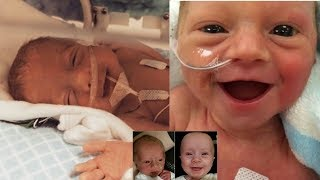 Top 12 Preemie Babies Smiling Because They Are Happy To Be Alive