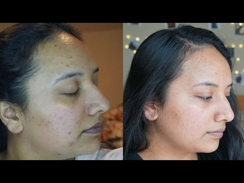 How to get rid of acne scars | Skincare routine | Retin-a