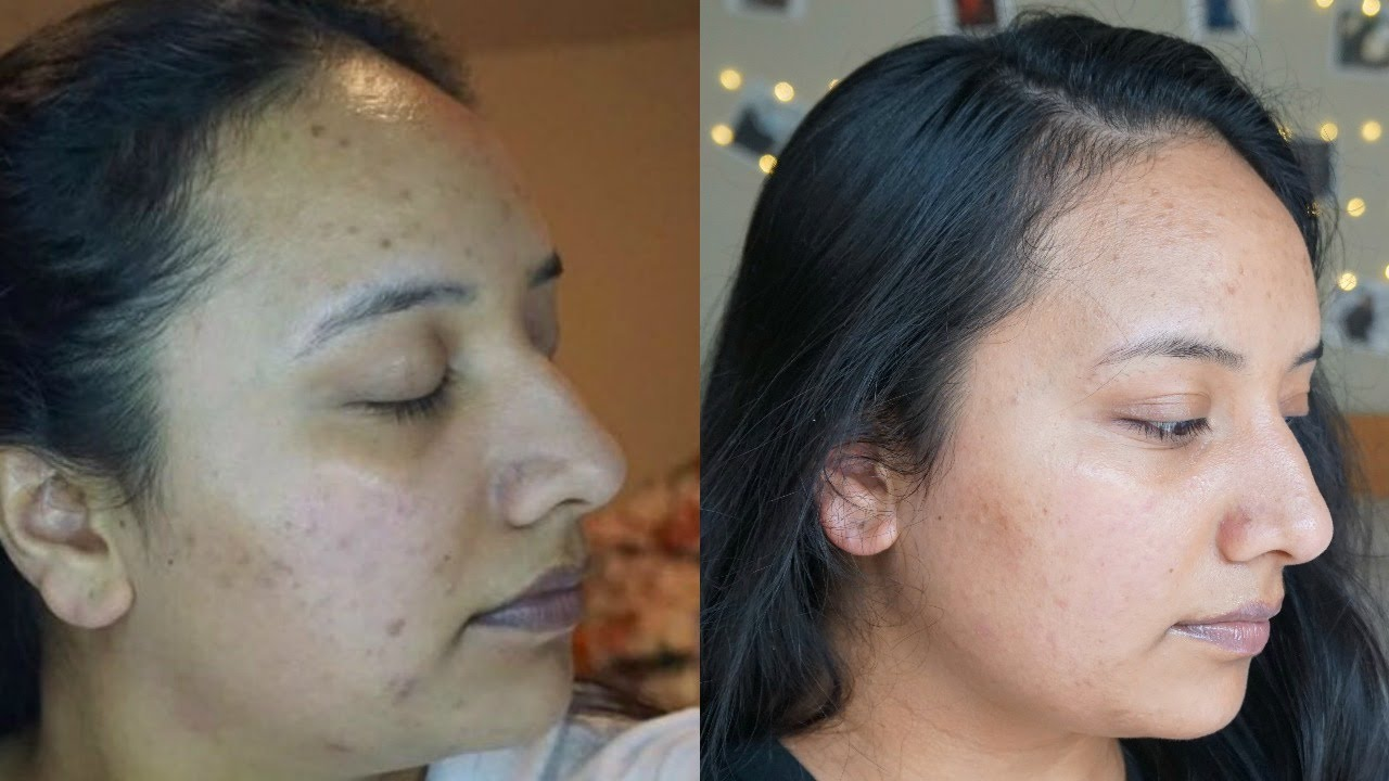 How To Get Rid Of Acne Scars Skincare Routine Retin A Youtube