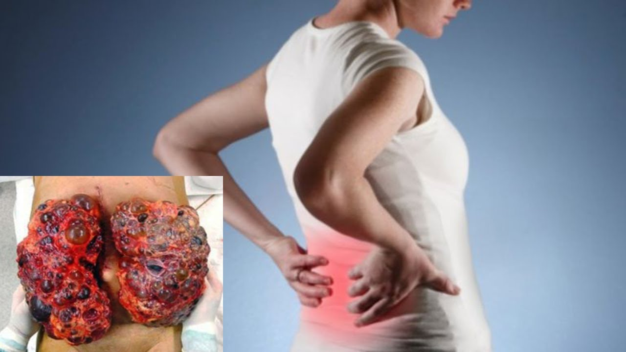 Natural Home Remedies For Kidney Infection