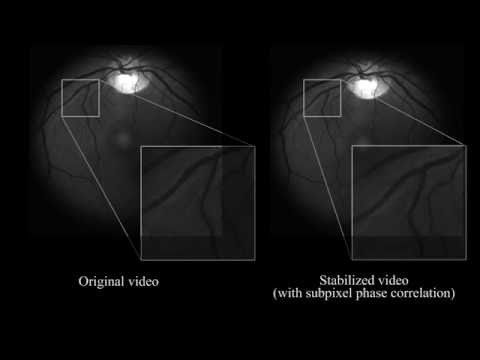 Image processing algorithms