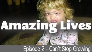 Amazing Lives - Can't Stop Growing - 4 year old girl suffering from Proteus Syndrome
