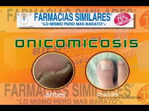 BIFONAZOL DE VENTA EN FARMACIAS SIMILARES