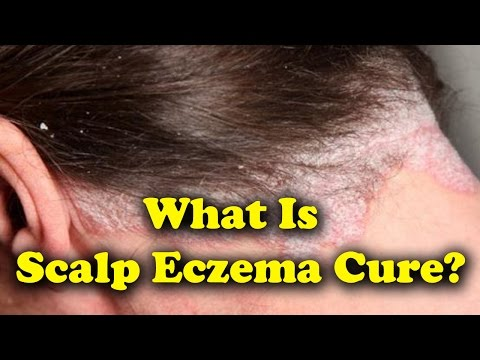 What Is Scalp Eczema Cure, Symptoms And Treatments - YT