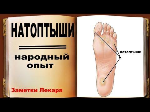 Натоптыши на ногах. Избавьтесь от натоптышей простыми народными средствами